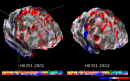 3D Brain image from two donors.